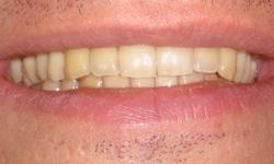 teeth_white_before2